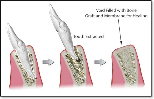 Bone Graft and Sinus Lift for Dental Implants at Mille Dental on map of uterus, map of nervous system, map of eyes, map of nasal cavity, map of oral cavity, map of stomach, map of the throat, map of spine, map of salivary glands, map of thyroid, map of respiratory system, map of pituitary gland, map of ovaries, map of brain, map of spleen, map of gallbladder, map of abdomen, map of sinus infection, map of bones, map of ear,